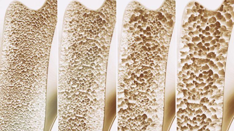Osteoporose: saiba mais sobre a doença
